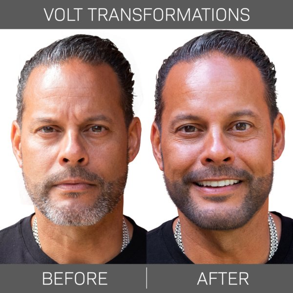 Volt Transforamtion1