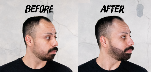 Beard Filler Blog Before and After